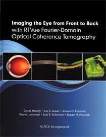 imaging the eye from front to back rtvue huang lumbroso duker schuman