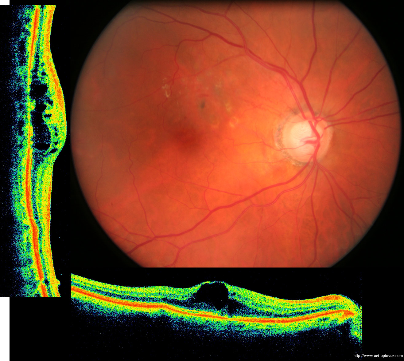Age Related Macular Degeneration Drug Market