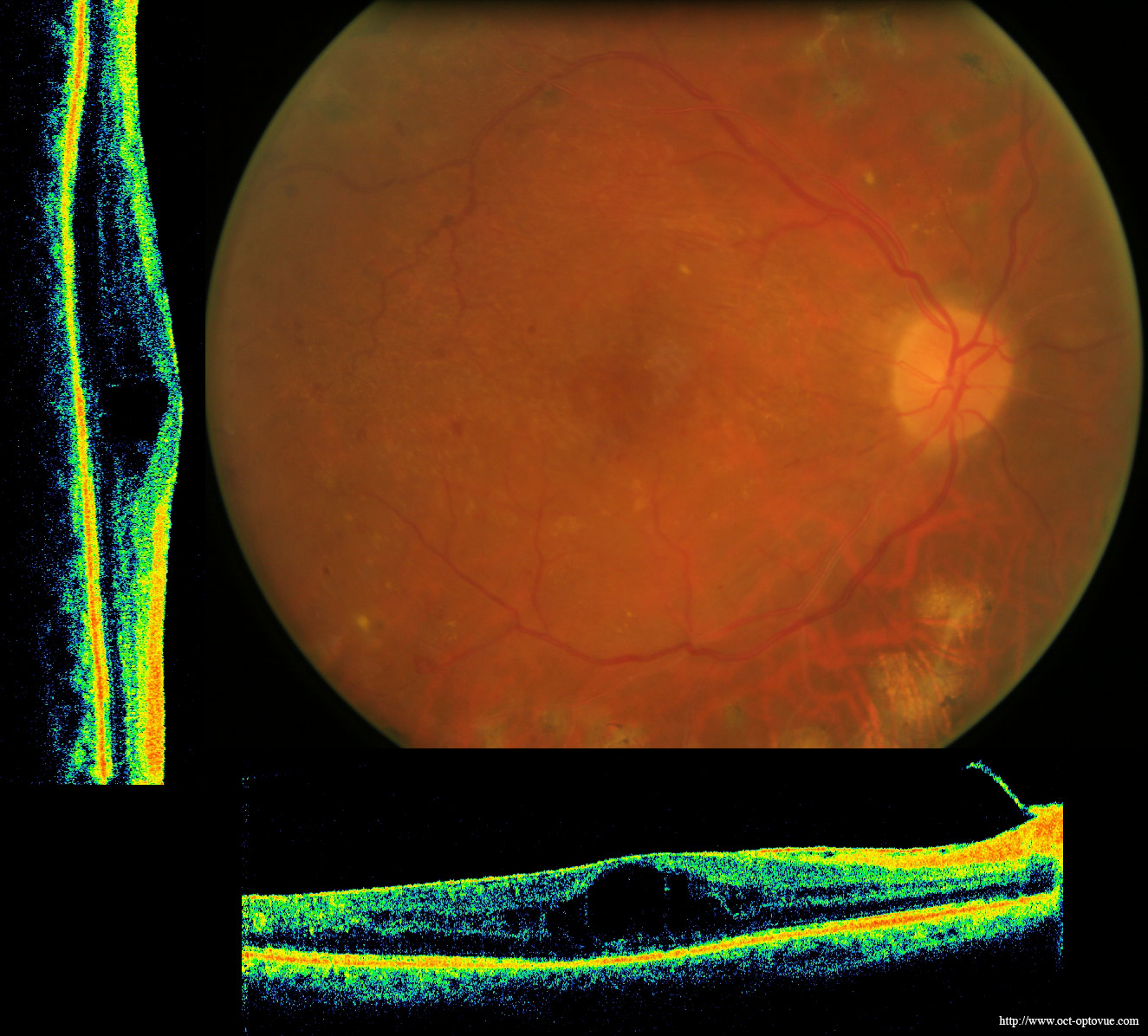 thesis on diabetic retinopathy Diabetic retinopathy  diabetic retinopathy is a disease that occurs when tiny blood vessels in the eye become damaged these delicate blood vessels are important because they nourish the retina (the nerve layer inside the eye that records what one sees and sends the information to the brain.