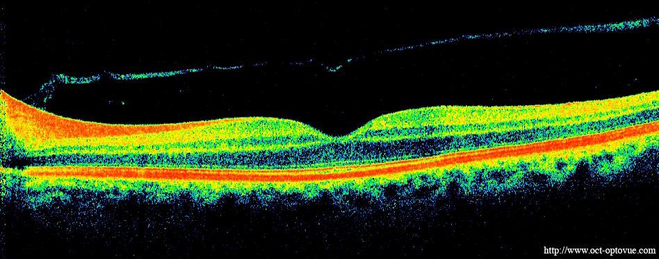 Rétine Normale En Oct Retina