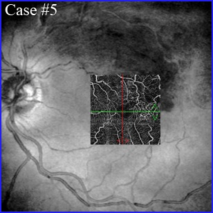 brvo oct-angiography
