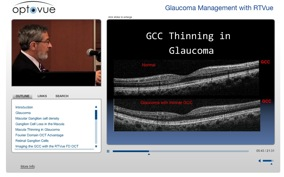 glaucoma management oct gcc